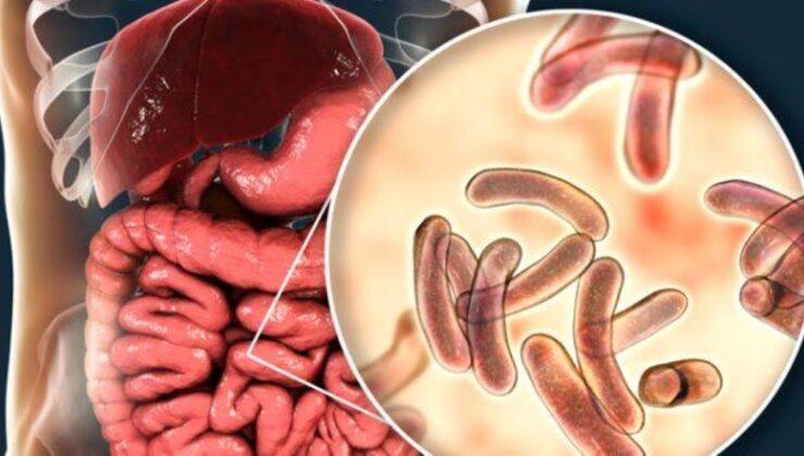 Kolera nedir? Kolera salgını belirtileri nelerdir? Kolera hastalığı nasıl bulaşır? Kolera tedavisi var mı?