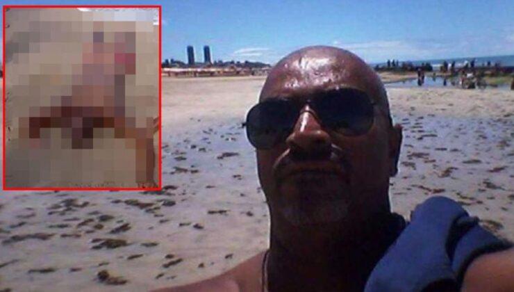 Köpek balığı dehşeti! Tuvaletini yapmak isteyen adamın kolunu ve cinsel organını kopardı